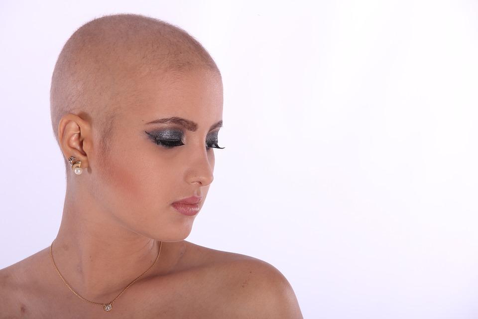 Perte de cheveux : quels sont les traitements possibles ?
